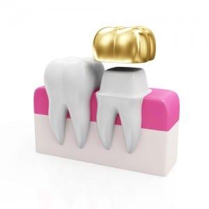 Dental Crowns Mount Prospect, IL