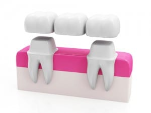 Dental Bridges Mount Prospect, IL